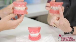 Hunter Valley Orthodontics - Dentists Newcastle